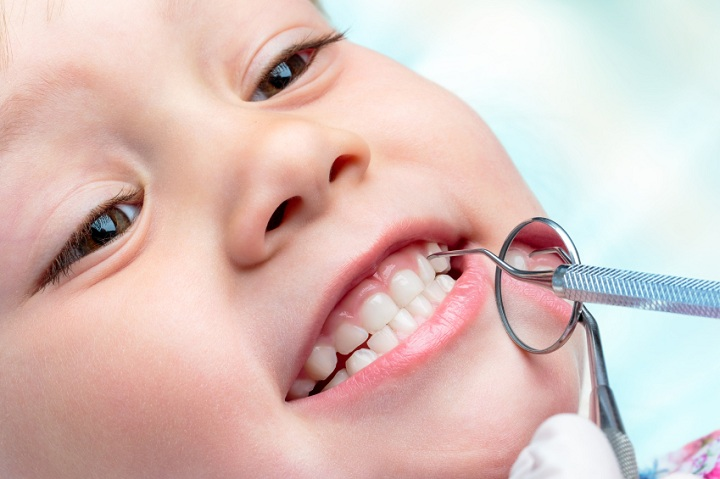 how to avoid cavities yahoo